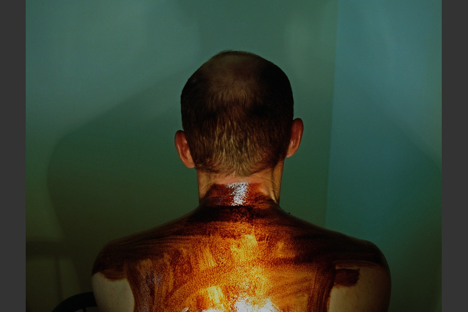 Oil smeared on man's back
